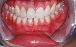 Зубы. Пример. Фото из интернета