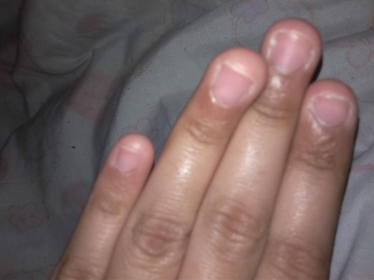 Помогите отращивать и восстановить ногти