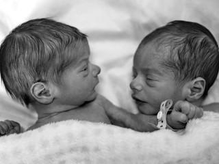 Шкала Апгар: оценка состояния новорожденного